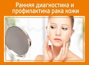Ранняя диагностика и профилактика рака кожи