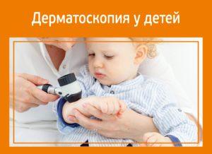 Дерматоскопия у детей