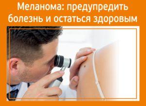 Меланома: предупредить болезнь и остаться здоровым
